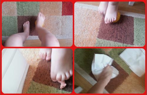 вальгусная стопа у ребенка
