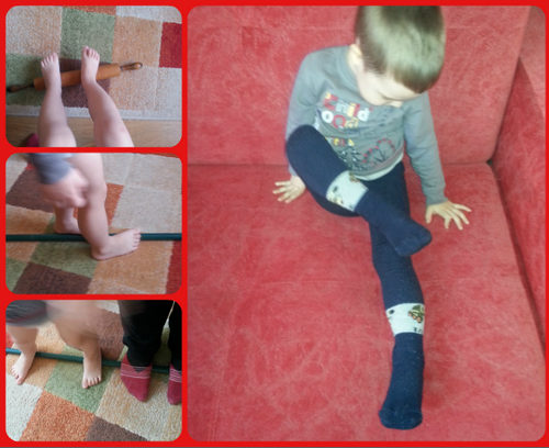 плоско-вальгусная стопа у ребенка фото
